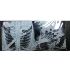 Guirlande Lumineuse de Radios de Squelettes - Décoration Halloween